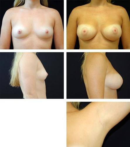 Endoscopic_Breast_Augmentation_Case_5953