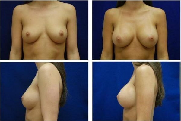 Endoscopic_Breast_Augmentation_Case_801