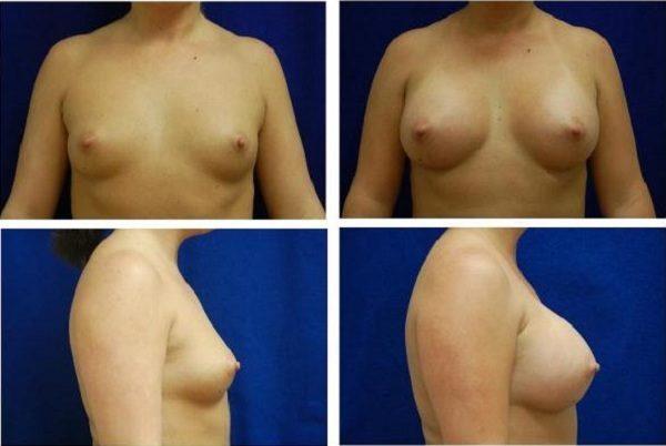 Endoscopic_Breast_Augmentation_Case_802