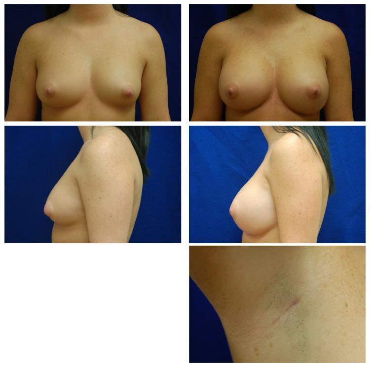 Endoscopic_Breast_Augmentation_Case_803