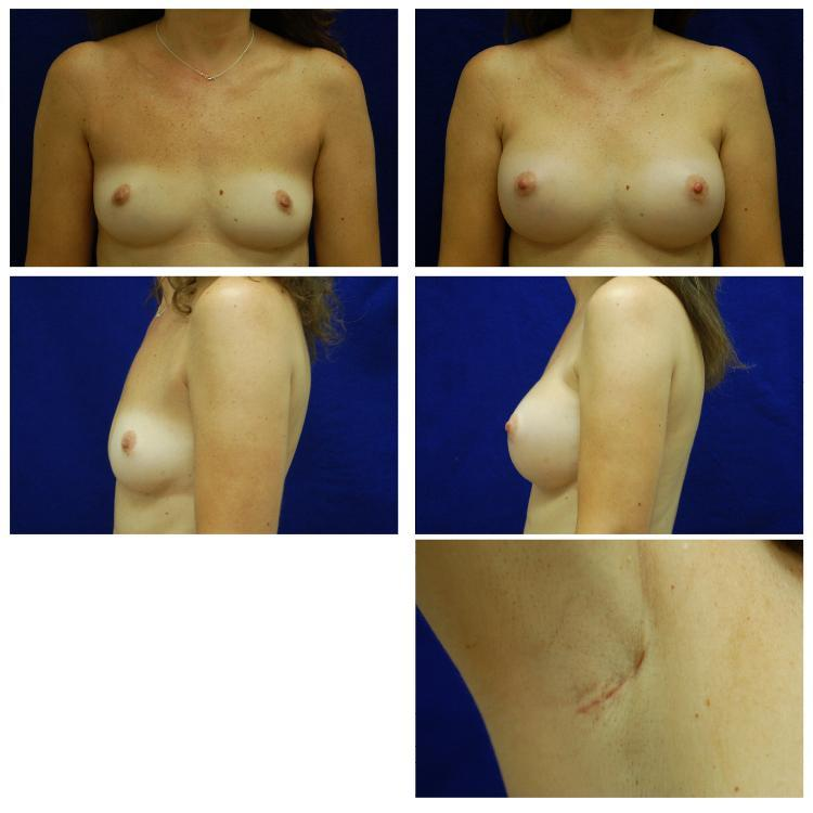 Endoscopic_Breast_Augmentation_Case_804