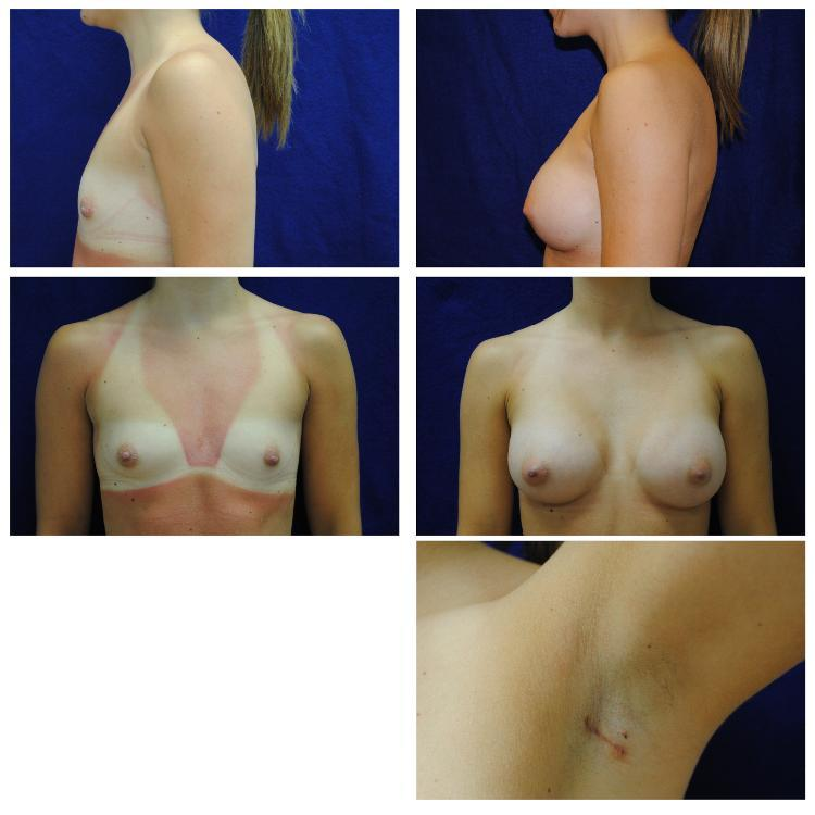 Endoscopic_Breast_Augmentation_Case_805