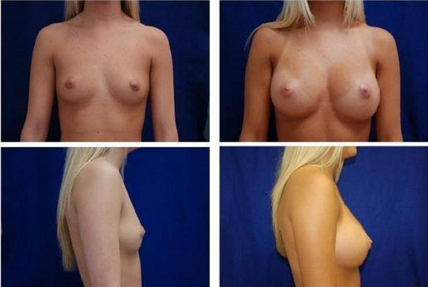 Endoscopic_Breast_Augmentation_Case_806
