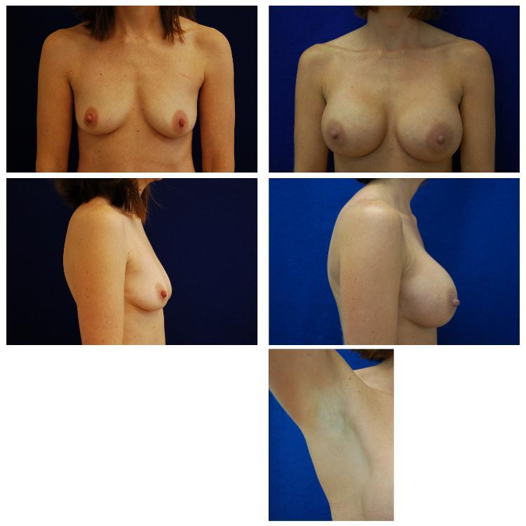 Endoscopic_Breast_Augmentation_Case_807