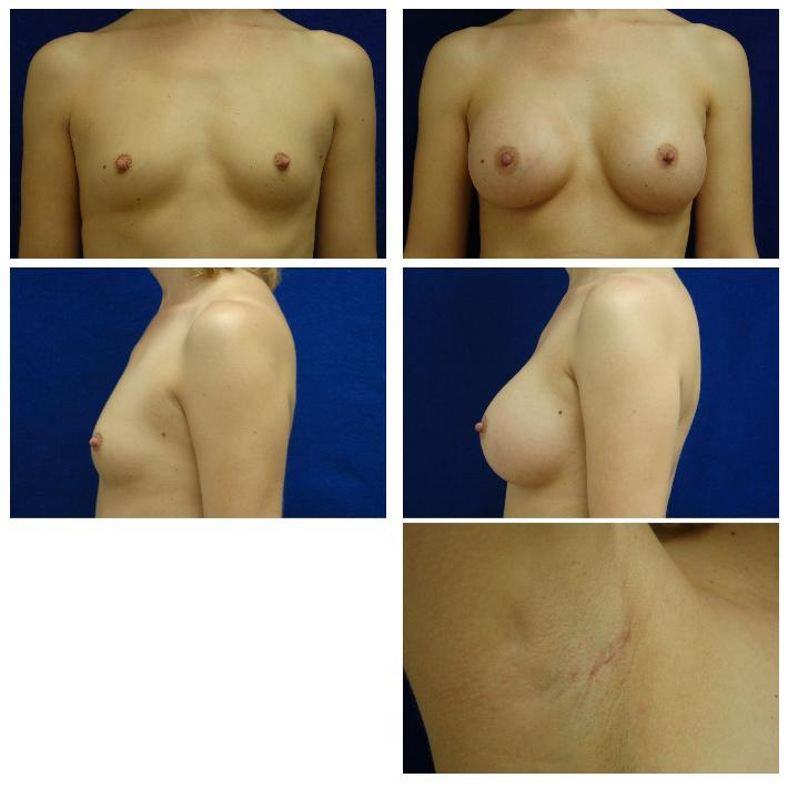 Endoscopic_Breast_Augmentation_Case_808