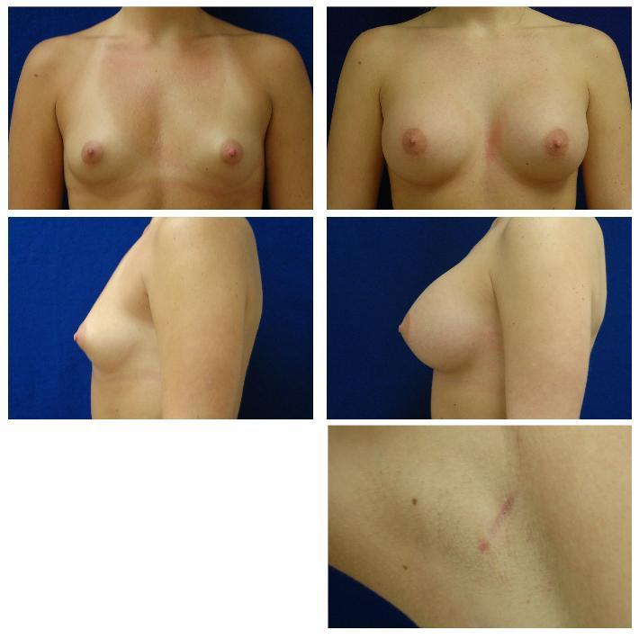 Endoscopic_Breast_Augmentation_Case_809