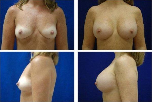 Endoscopic_Breast_Augmentation_Case_810
