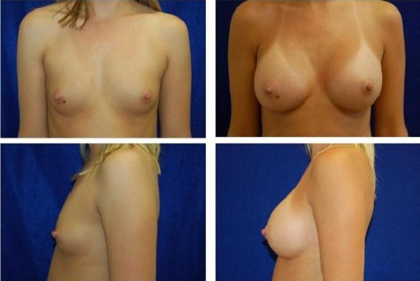 Endoscopic_Breast_Augmentation_Case_811