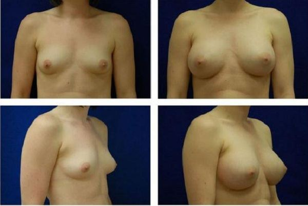 Endoscopic_Breast_Augmentation_Case_820