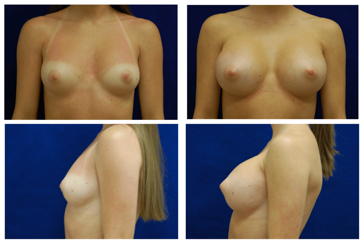Endoscopic_Breast_Augmentation_Case_825