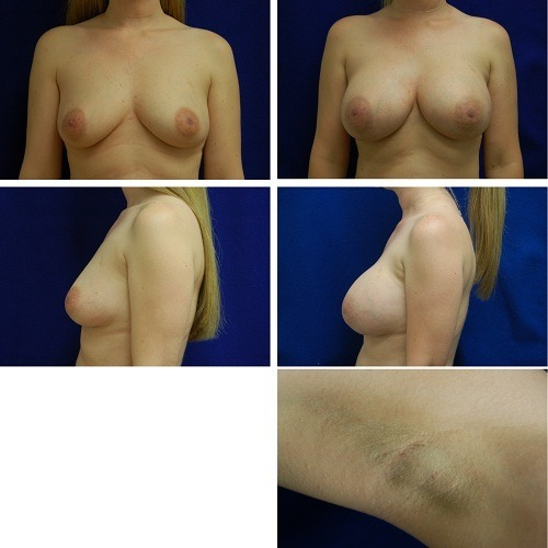 Endoscopic_Breast_Augmentation_Case_9096