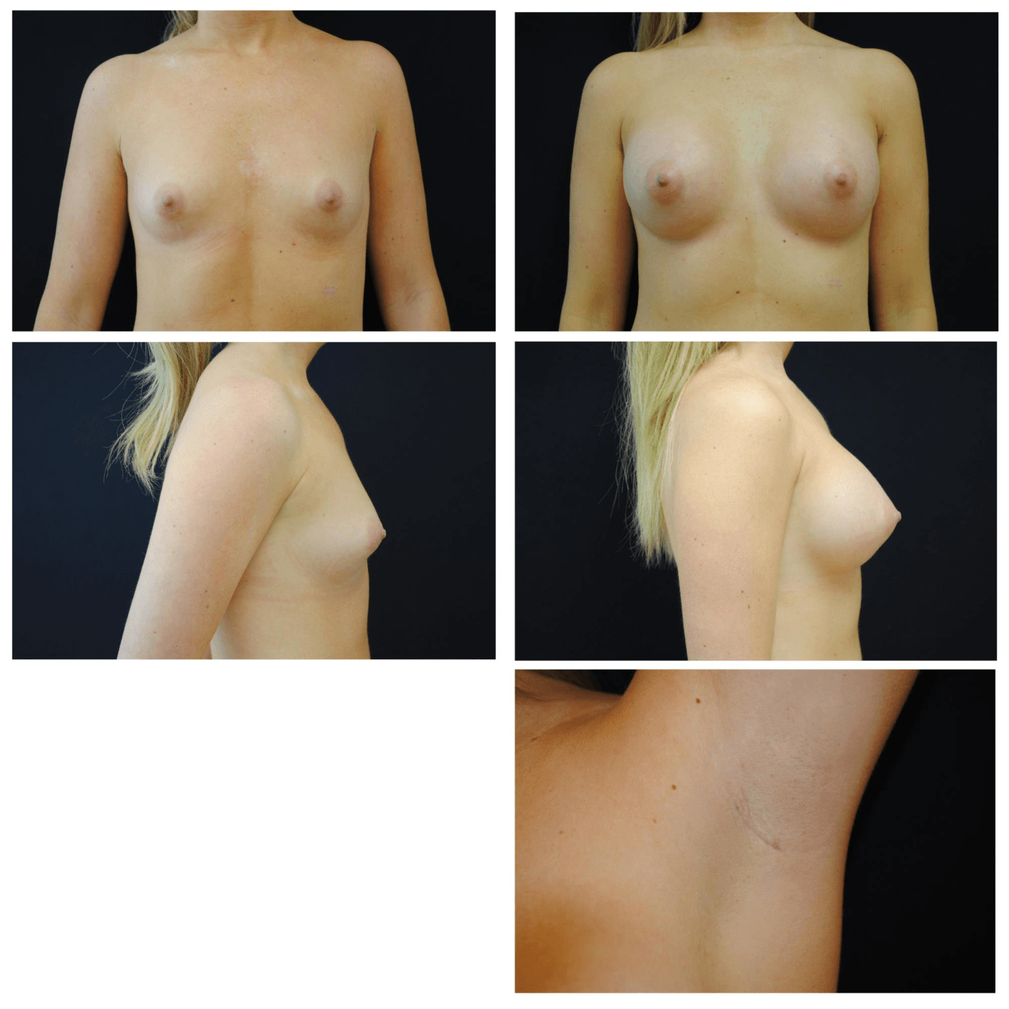 Endoscopic_Breast_Augmentation_Case_910