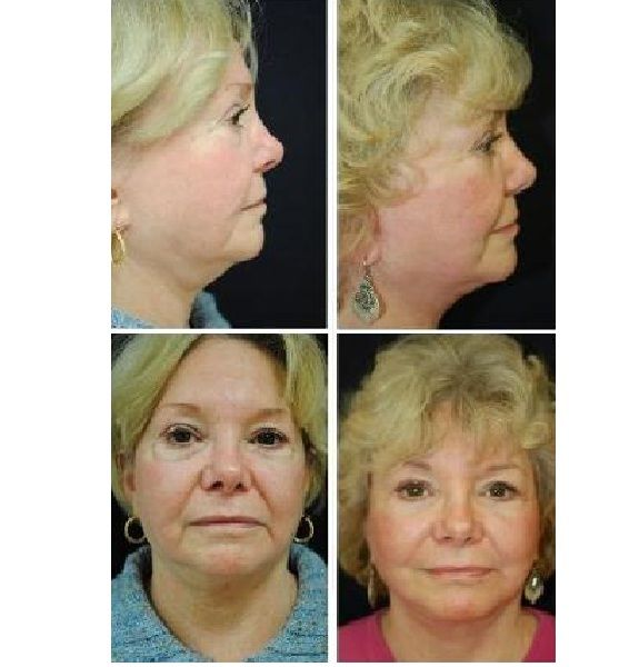 Face_Lift_Case_3366