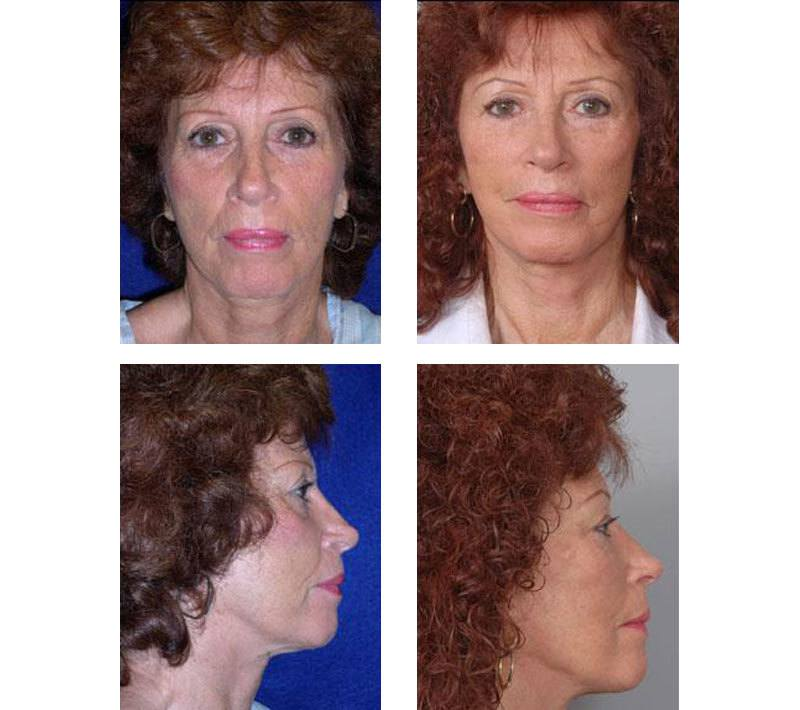 Face_Lift_Case_607