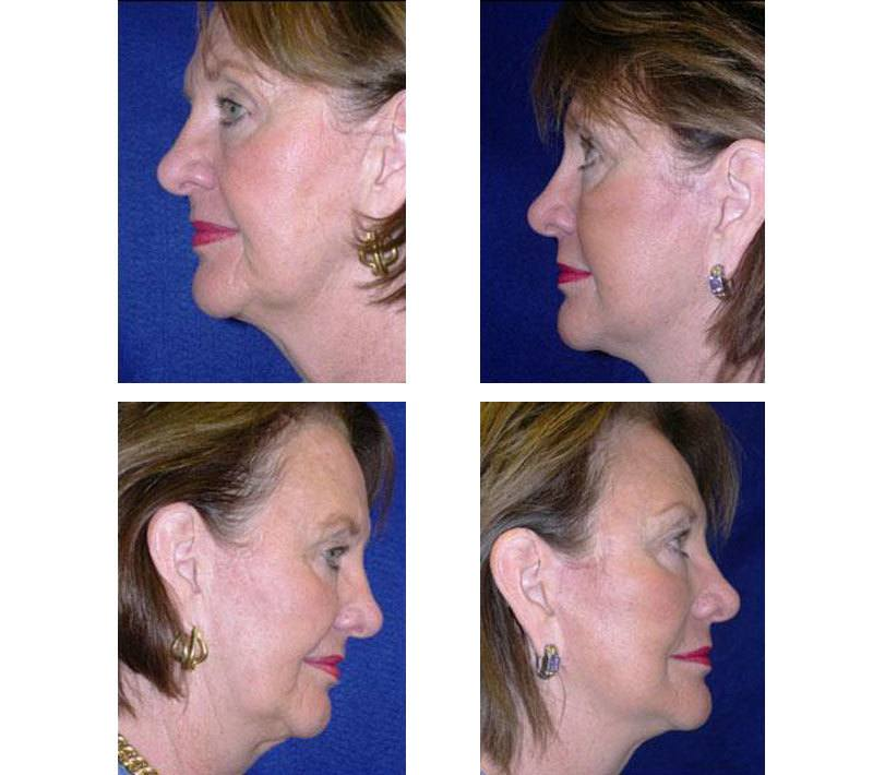 Face_Lift_Case_608