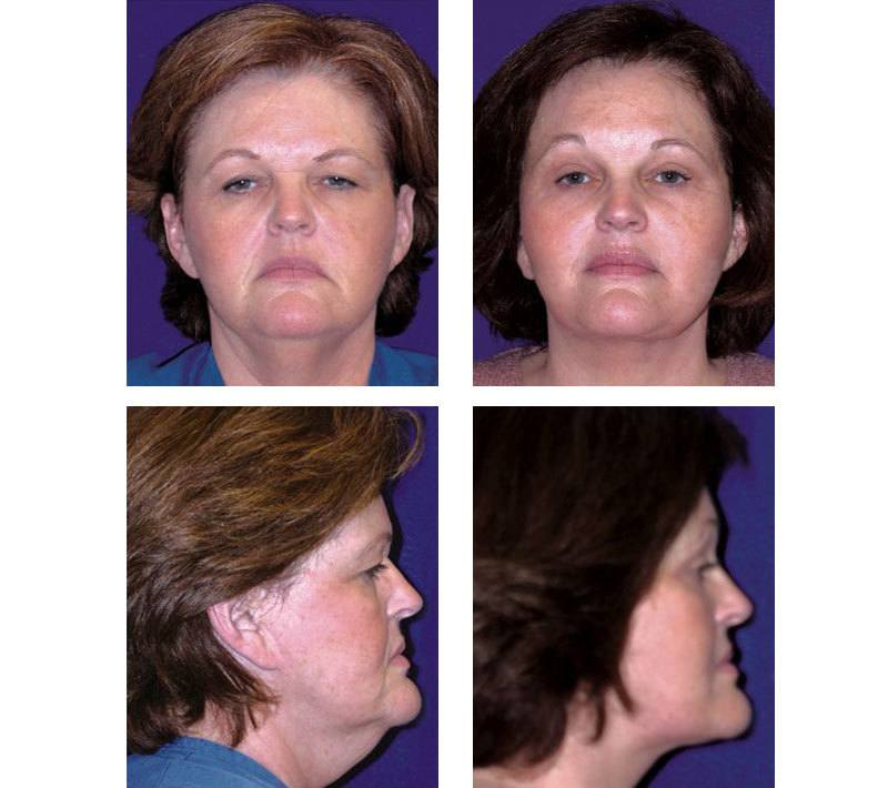 Face_Lift_Case_615