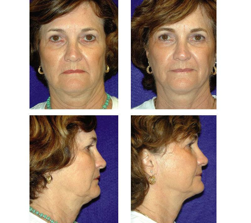 Face_Lift_Case_616