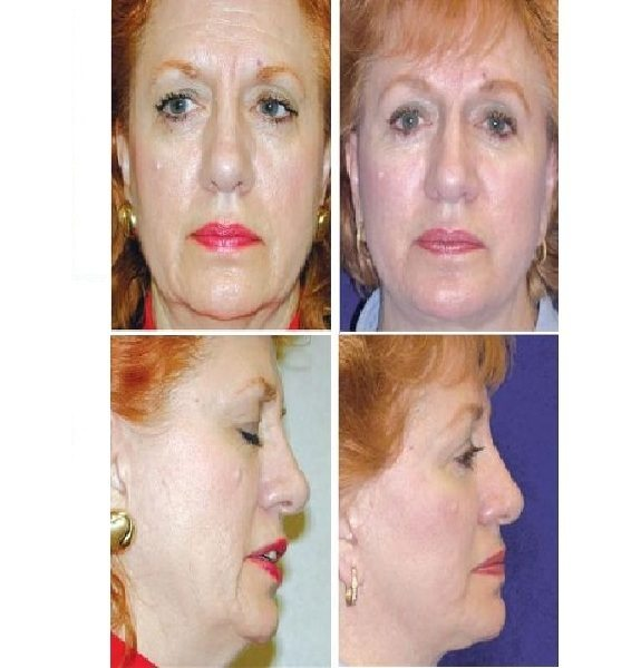 Face_Lift_Case_624