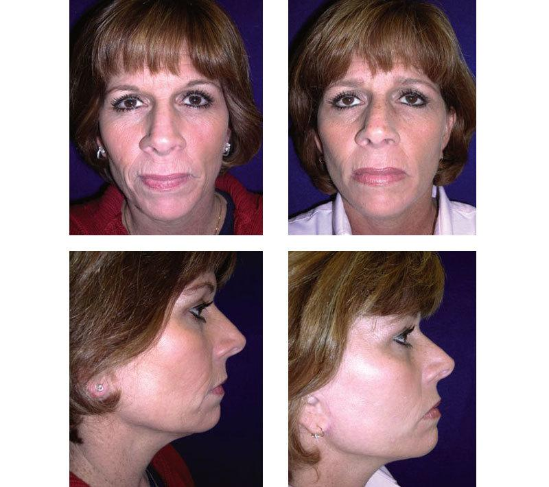 Face_Lift_Case_626