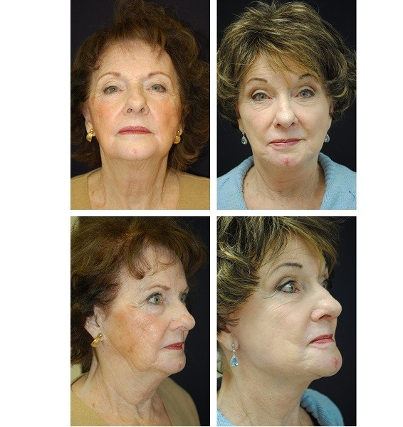 Face_Lift_Case_652