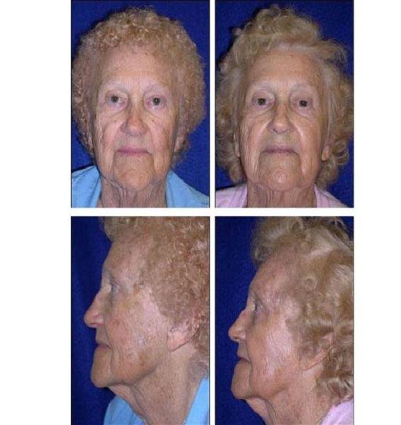 Facial_Resurfacing_Case_601
