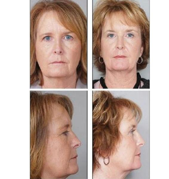 Facial_Resurfacing_Case_602