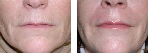 Facial_Resurfacing_Case_603