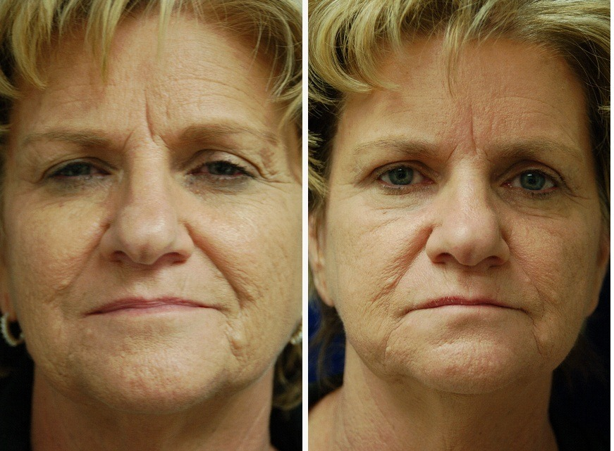 Facial_Resurfacing_Case_8609