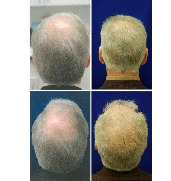 Hair_Transplant_Case_35601-2
