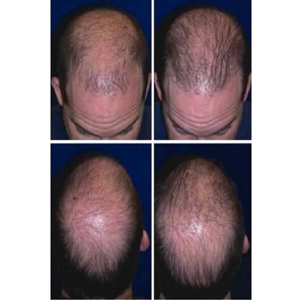 Hair_Transplant_Case_504