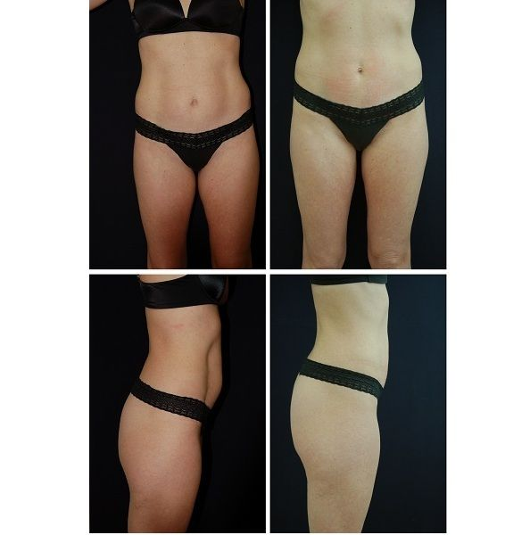 Liposuction_Case_2018
