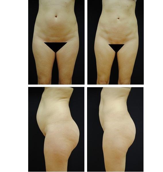 Liposuction_Case_345