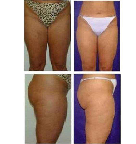 Liposuction_Case_703
