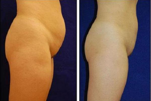Liposuction_Case_711