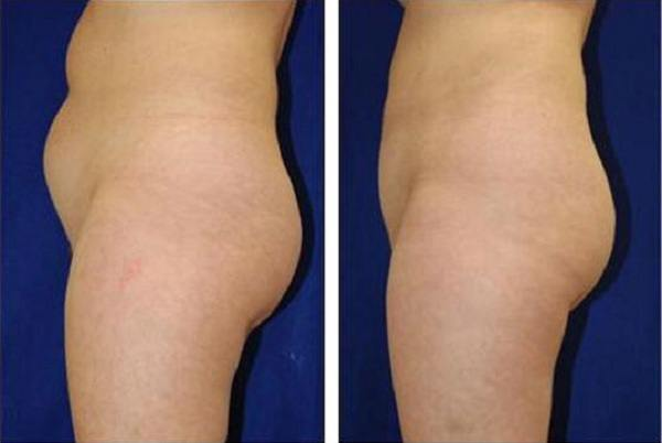 Liposuction_Case_714