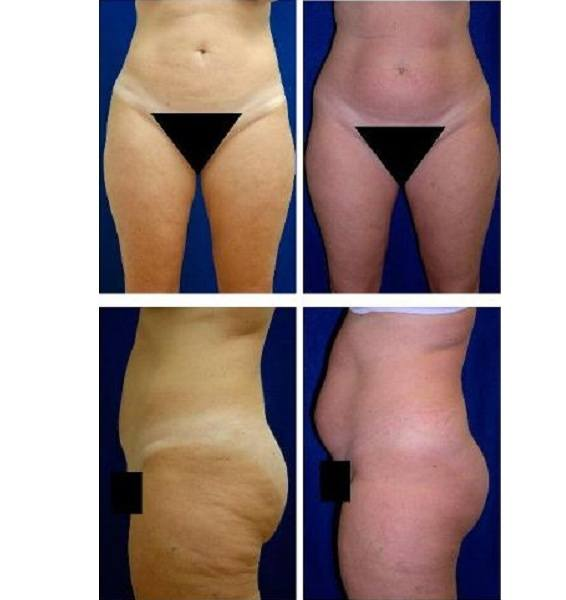 Liposuction_Case_718
