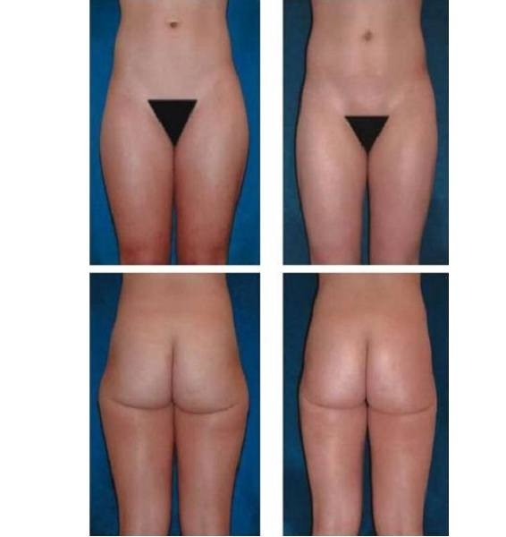 Liposuction_Case_725