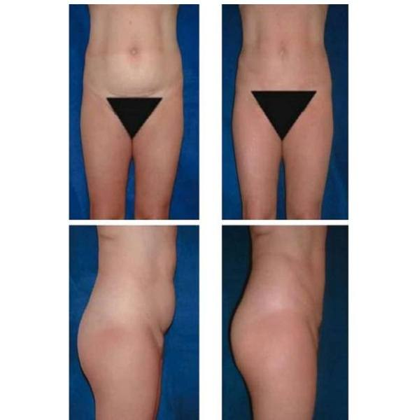 Liposuction_Case_970