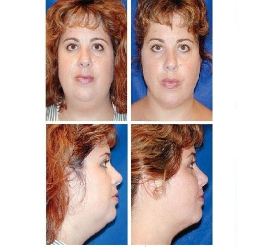 Neck_Liposuction_Case_601
