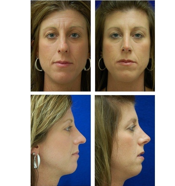 Rhinoplasty_Case_146