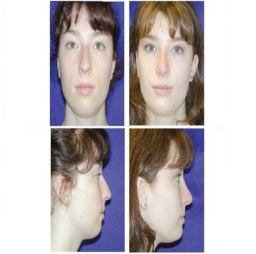 Rhinoplasty_Case_601