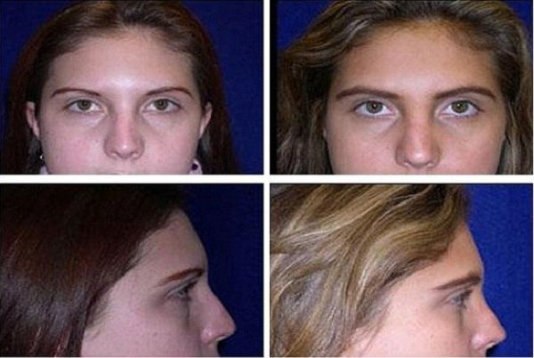 Rhinoplasty_Case_604