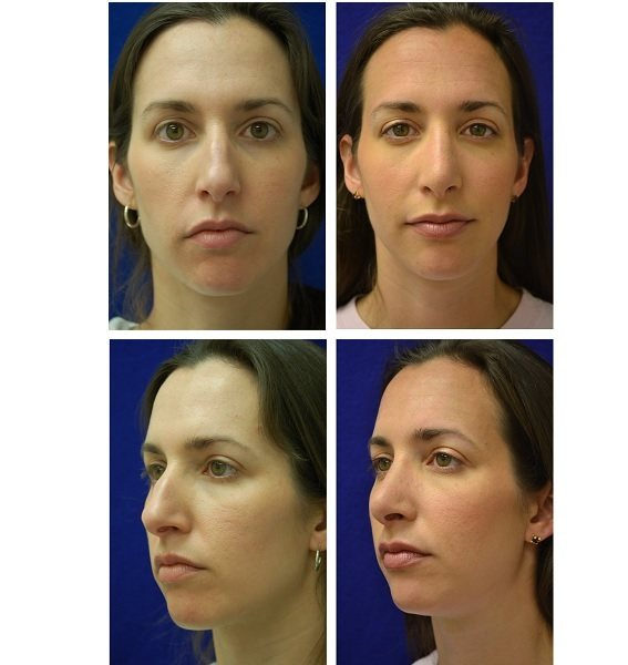 Rhinoplasty_Case_60941