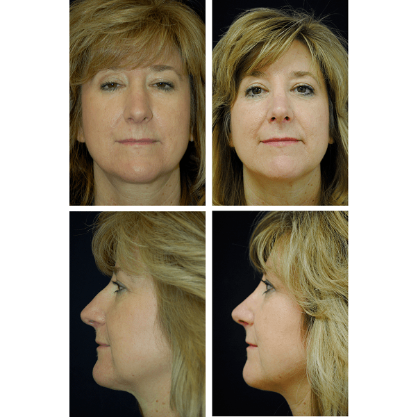 Rhinoplasty_Case_6698