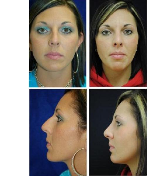 Rhinoplasty_Case_700