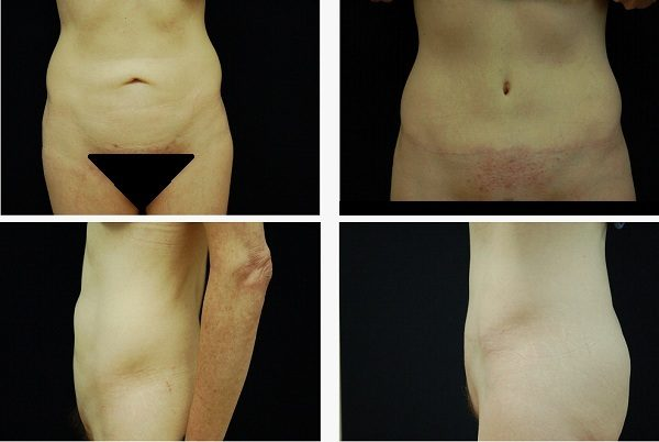 Tummy_Tuck_Case_0585
