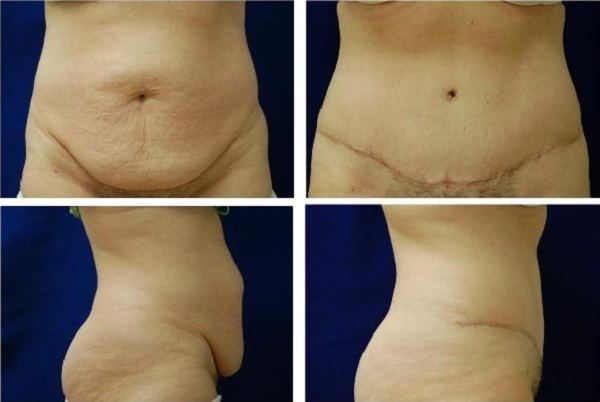 Tummy_Tuck_Case_0631