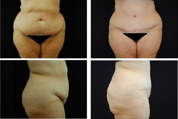 Tummy_Tuck_Case_0635