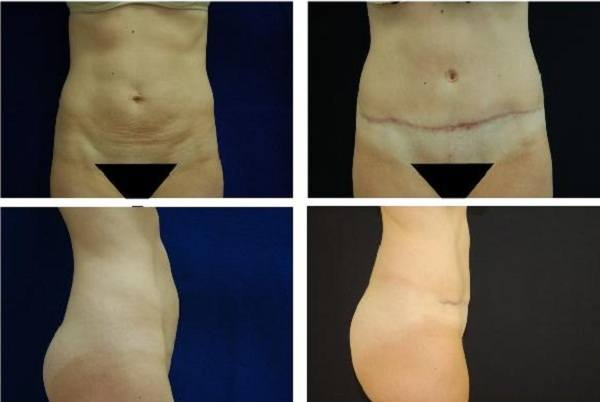 Tummy_Tuck_Case_0636