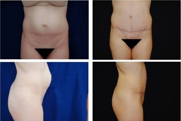 Tummy_Tuck_Case_0638